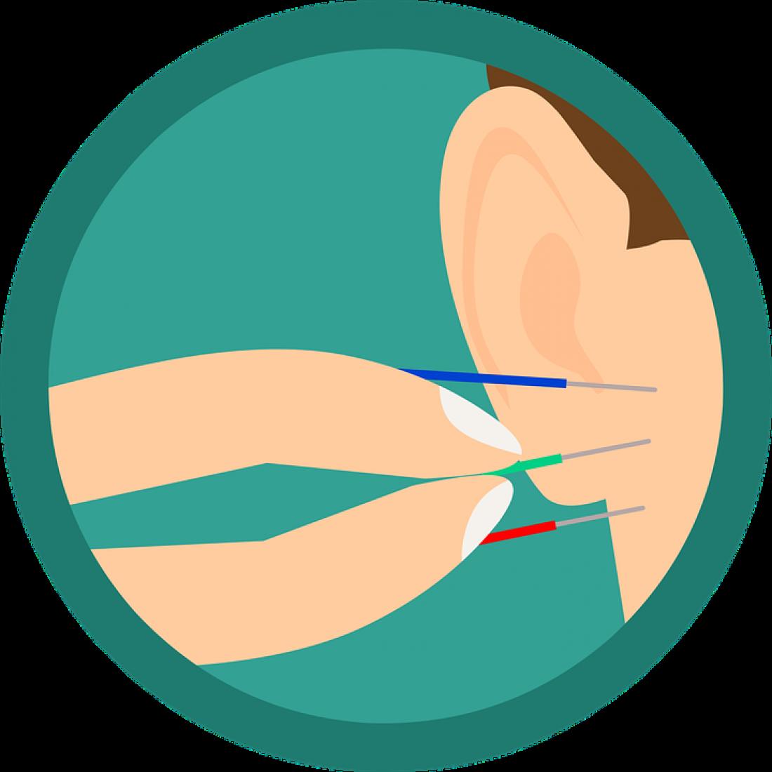 Mengenal Teknik Pengobatan Akupuntur